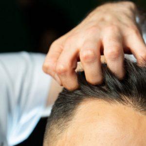 כמה עולה השתלת שיער בטורקיה